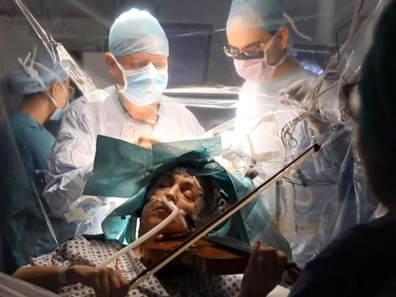 Musician plays violin during brain surgery to remove tumour | UK News