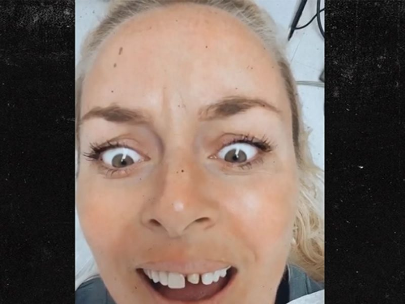 Lindsey Vonn Shows Off Gnarly Teeth Procedure For New Chompers